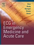 Picture of ECG in Emergency Medicine and Acute Care