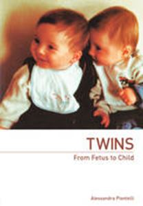 Picture of Twins  From fetus to child