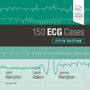 Picture of 150 ECG Cases 5ed